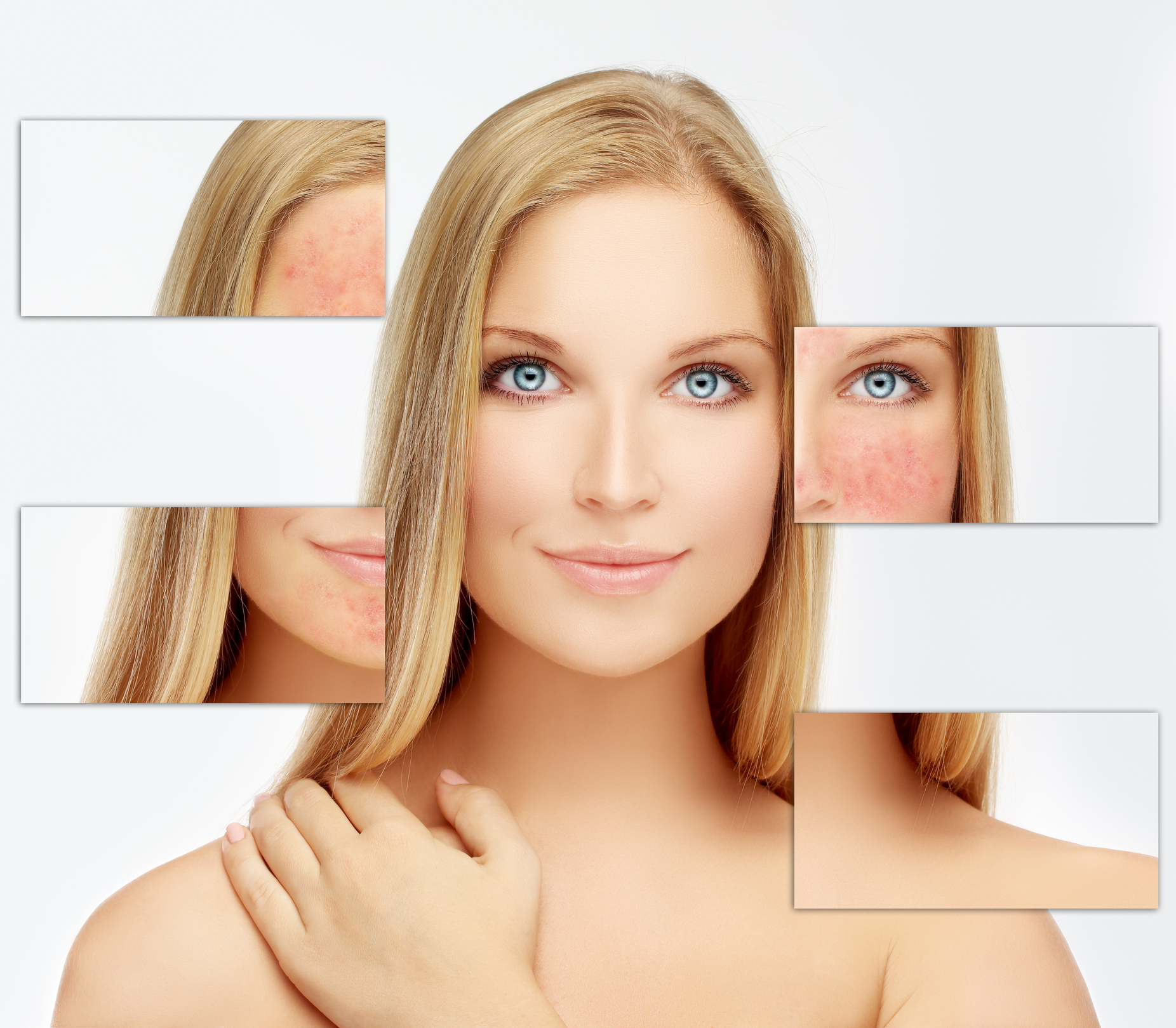 Which Chemical Peel Is Best For You?