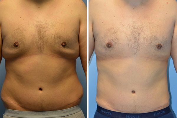 male liposuction patient