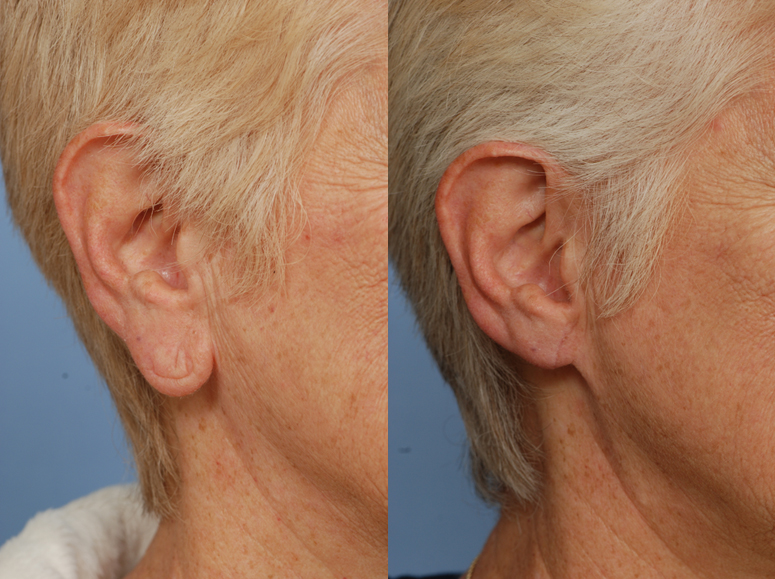earlobe reduction before and after