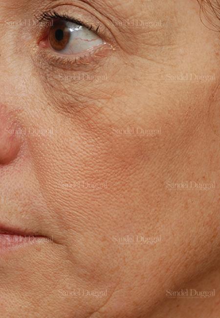 cheek augmentation patient