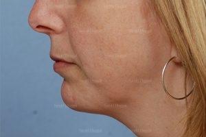 chin augmentation patient