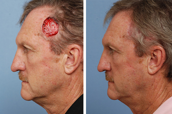 forehead reconstruction before and after