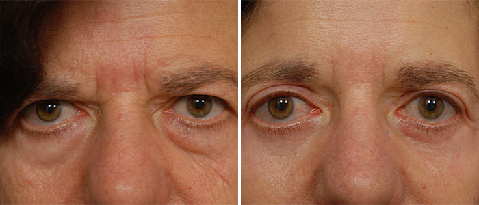 brow lift / eyelid surgery before and after