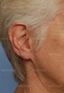 earlobe repair patient