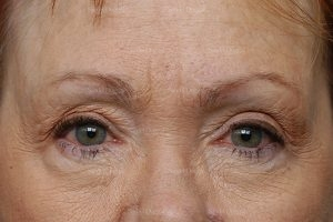 eyelid rejuvenation patient