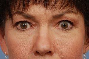 eyelid rejuvenation patient