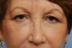 forehead lift patient