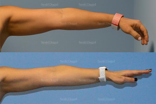 bra roll liposuction patient