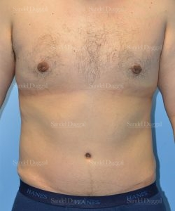 leg and flank liposuction patient