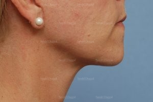 mini facelift patient