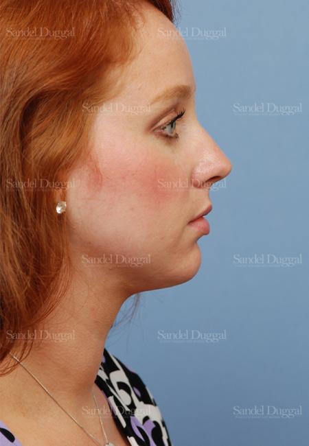 neck liposuction patient