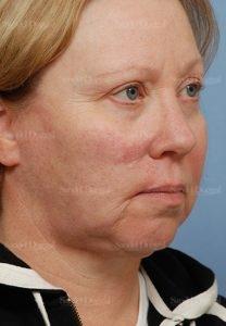 mohs reconstruction patient