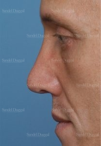 revision rhinoplasty patient