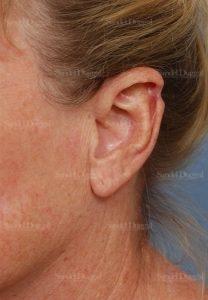 scar revision patient