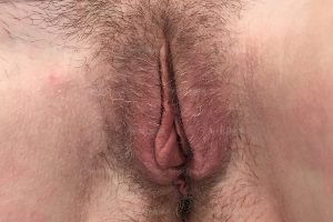 labiaplasty patient