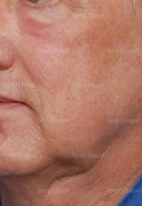 laser skin resurfacing patient
