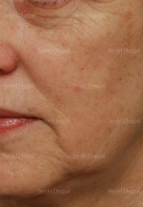zlaser skin resurfacing patient