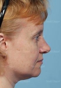rhinoplasty patient