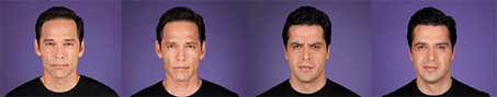 before and after botox men
