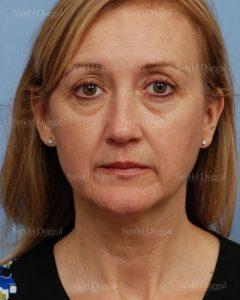 co2 laser skin resurfacing patient